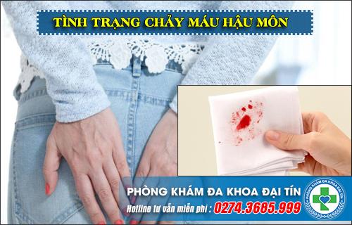 5 bệnh gây chảy máu hậu môn