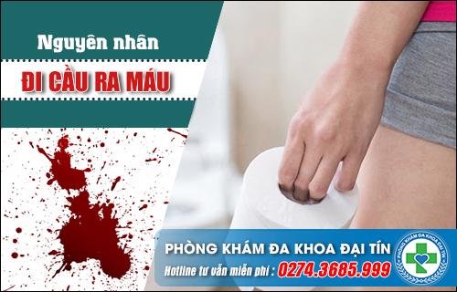 Những nguyên nhân dẫn đến đi cầu ra máu