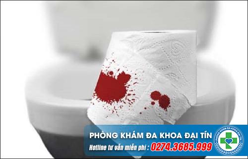 Đi ỉa ra máu là dấu hiệu cảnh báo bệnh gì?